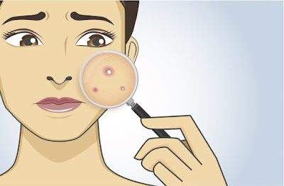 Suivre un régime anti acné