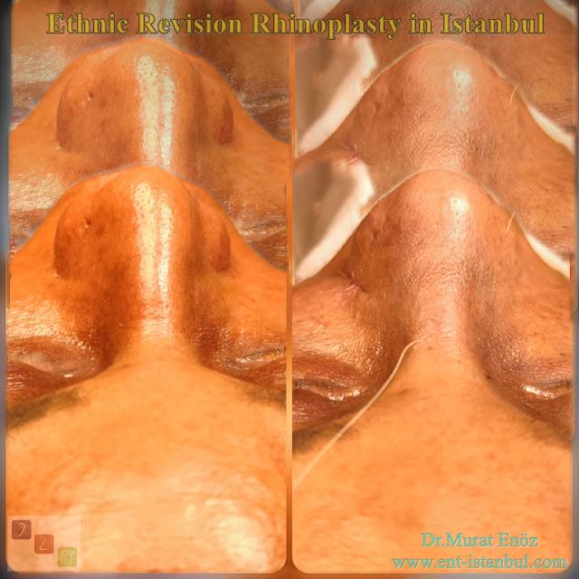 African American rhinoplasty,Thick skin rhinoplasty,Ethnic expert nose job surgeon,Black nose job,Ethnic Rhinoplasty Istanbul,Rhinoplasty for African American Nose,