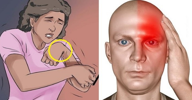 8 Horrific Signs and Symptoms That You Are Likely To Have Silent STROKE And Soon Other Will Follow