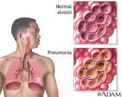 https://1.bp.blogspot.com/-_cT5ANpbw38/WNt5IBe-aUI/AAAAAAAAAJA/s8KTHtBn8aEWDerpE-esq_CI9xfYUr0BgCLcB/s1600/Pneumonia%2B3.jpg
