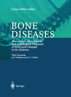 Bone Diseases Macroscopic, Histological, and Radiological Diagnosis of Structural Changes in the Skeleton