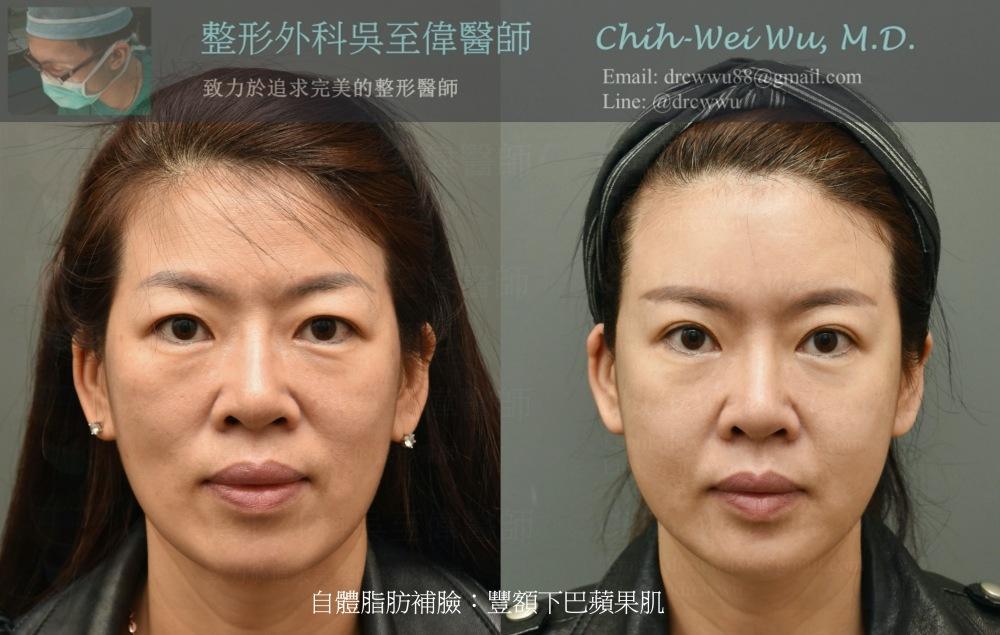 2020年11月最新自體脂肪補臉案例:全臉補脂,豐額,蘋果肌,下巴,臉頰,左為術前,右為術後,整體年輕許多