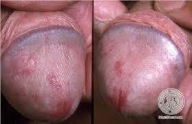 Obat Muncul Luka Disekitar Ujung Penis dan Terasa Gatal