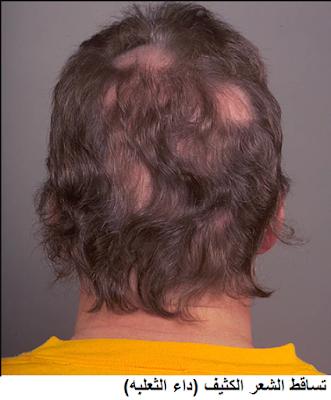 سقوط الشعر بغزارة بعد البروتين