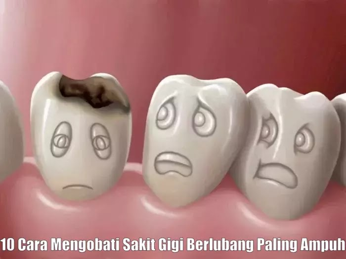 10 Cara Mengobati Sakit Gigi Berlubang Paling Ampuh
