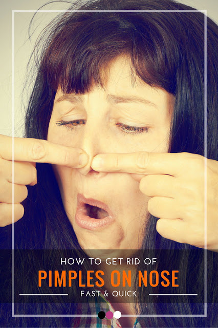 How to Get Rid of Pimples on The Nose