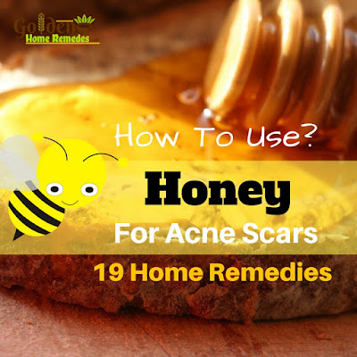 Honey For Acne Scars, Honey Acne Scars, How To Use Honey For Acne Scars, Does Honey Help Acne Scars, Is Honey Good For Acne Scars, How To Get Rid Of Acne Scars, How To Get Rid Of Acne Scars Fast, Home Remedies For Acne Scars,