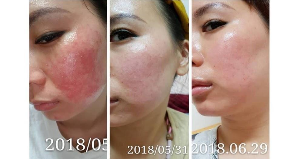 臺大吳及時皮膚科自費診所: 酒糟 油肌膚質/類固醇皮膚炎/蠕形蟎蟲過多癥