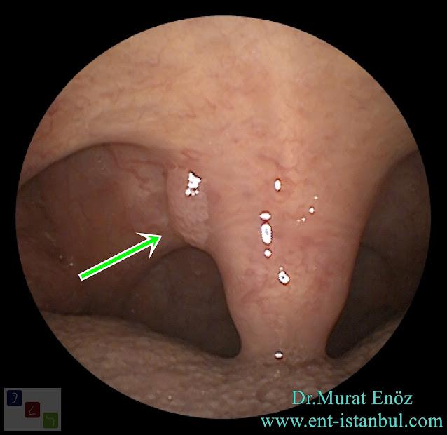 Papilloma of the Uvula