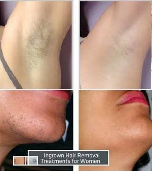 Krozenwart 08152054076 Ayurvedic Permanent Hair Removal Soap