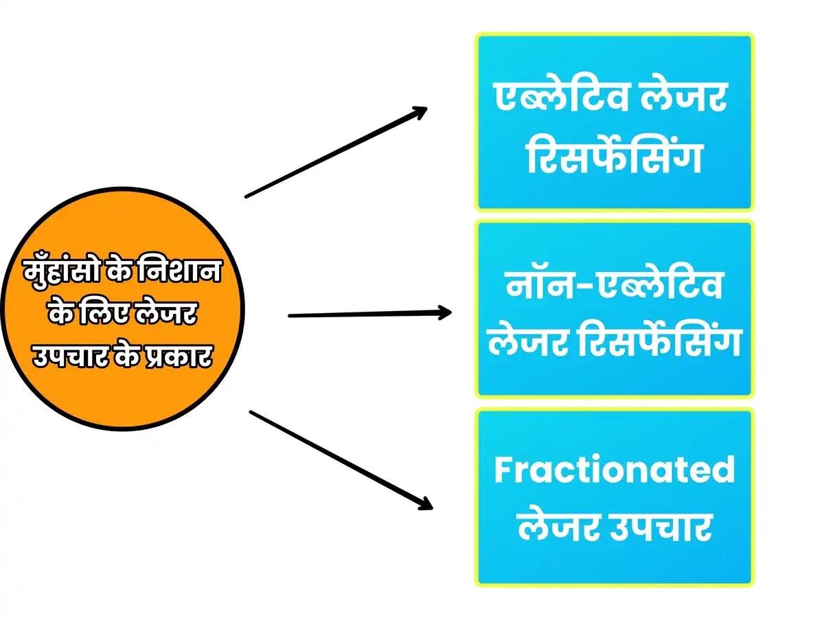 Laser treatment for ance scars in hindi: फायदे, नुकसान, इत्यादि