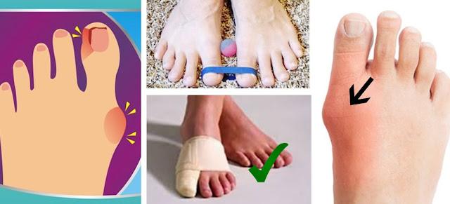 Comment prendre soin des pieds pour éviter toute déformation supplémentaire par l'oignon
