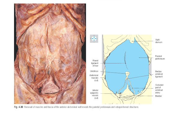 Removal of muscles and fascia of the anterior abdominal wall reveals the parietal peritoneum and extraperitoneal structures.