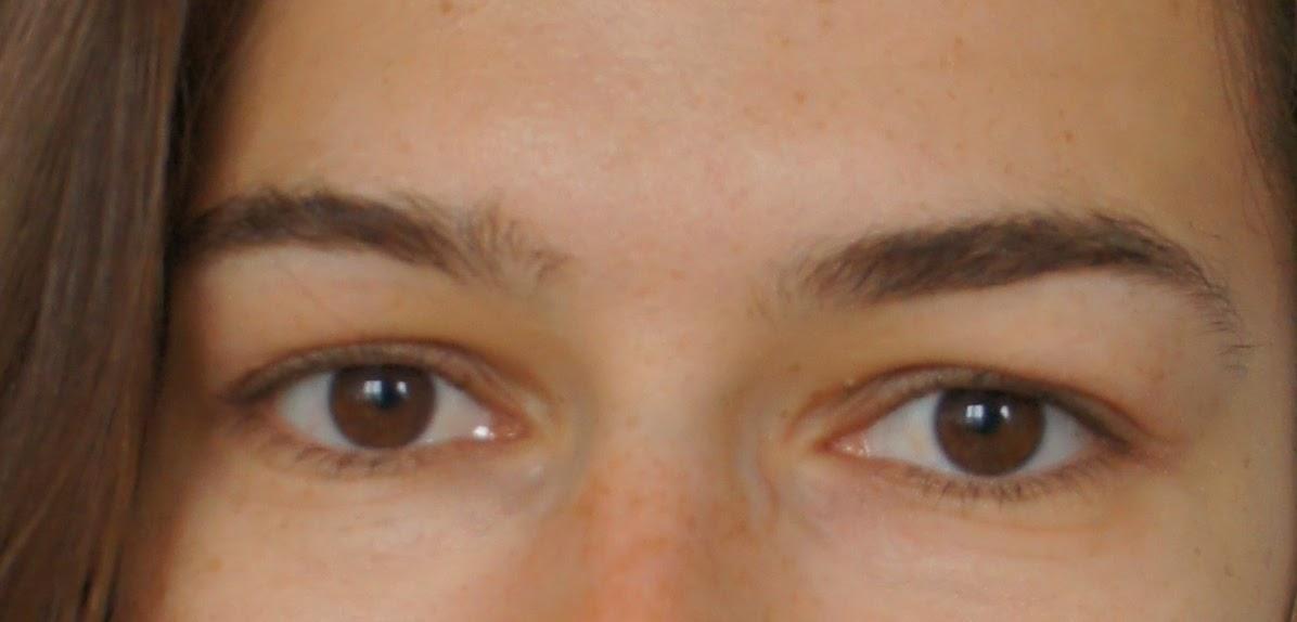 eczema eyelids - photo #29