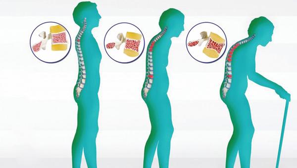 Kemik Erimesine İyi Gelen Yiyecekler, Ne İyi Gelir