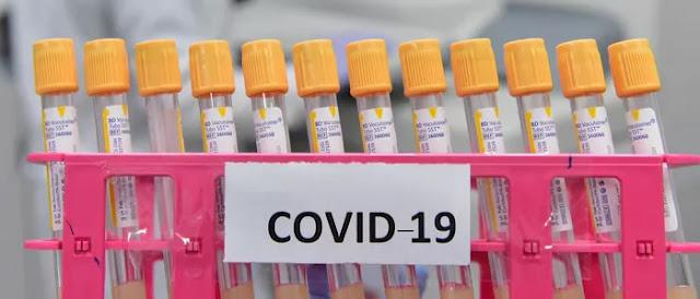 Hackers Russos tentam roubar a pesquisa de vacina contra Covid-19 de outros países.