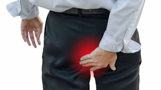penyebab benjolan di anus