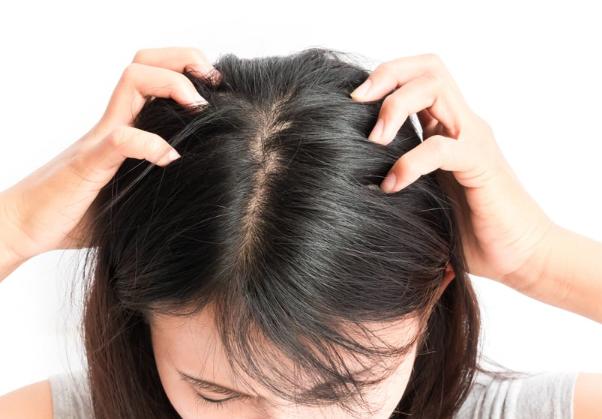 4 Cara Menghilangkan Kutu Rambut Secara Alami