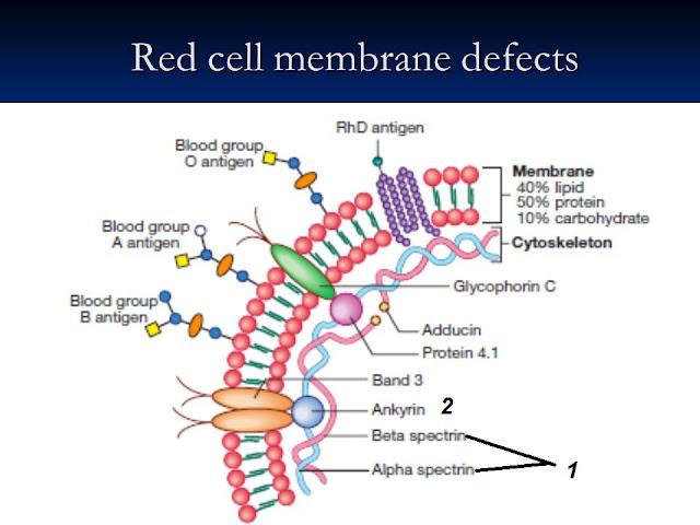 الانميا الوراثية لكرات الدم الحمراء الكروية او (hereditary spherocytosis)