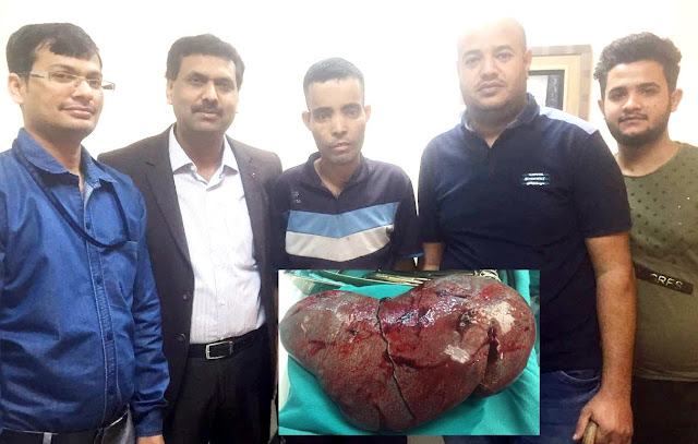 3 Kg Spleen Removed By Asian Hospitals Doctors