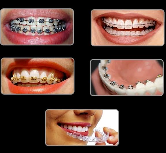Orthodontics |Everything You Need To Know About How We Can Correct Crooked Malaligned Teeth