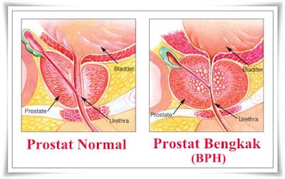 Cara Menyembuhkan Pembengkakan Kelenjar Prostat
