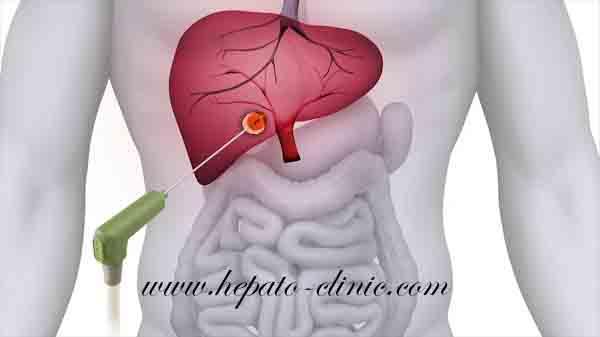 احدث وساثل علاج اورام الكبد السرطانيه, افضل دكتور لعلاج اورام الكبد, علاج اورام الكبد الخبيثة, علاج اورام الكبد بالتردد الحرارى, علاج اورام الكبد بالميكروويف, علاج اورام الكبد بدون جراحة, التردد الحراري لعلاج اورام الكبد, افضل دكتور لعلاج اورام الكبد بالتردد الحرارى, افضل دكتور لعلاج اورام الكبد بالميكروويف, احسن دكتور كبد فى مصر, افضل دكتور كبد فى مصر, افضل طبيب كبد فى مصر, افضل دكتور كبد فى القاهرة, دكتور اورام بالقاهره