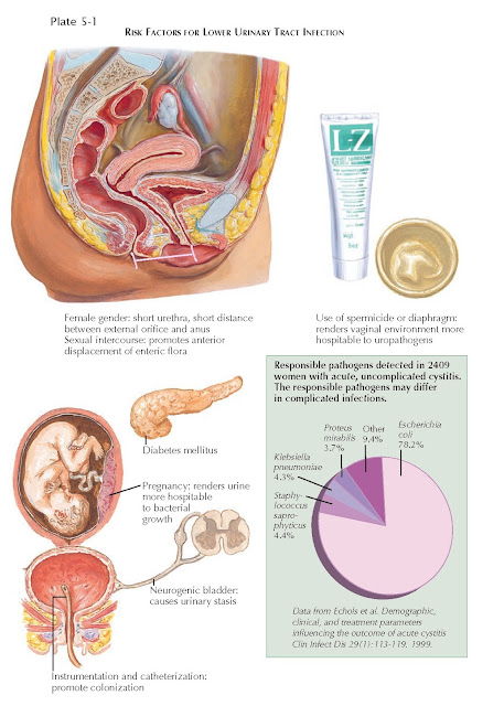 RISK FACTORS FOR LOWER URINARY TRACT INFECTION
