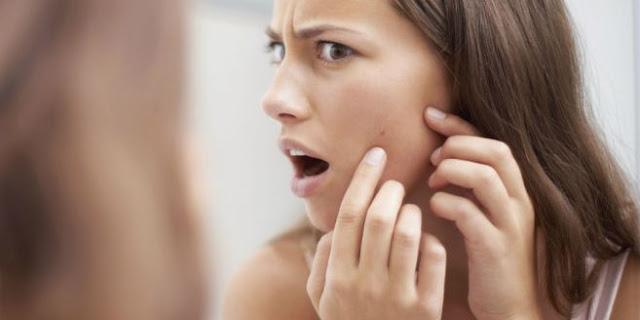Kenali Jenis Kulit Wajah Kamu Dulu Sebelum Memilih Produk Perawatan Yang Tepat