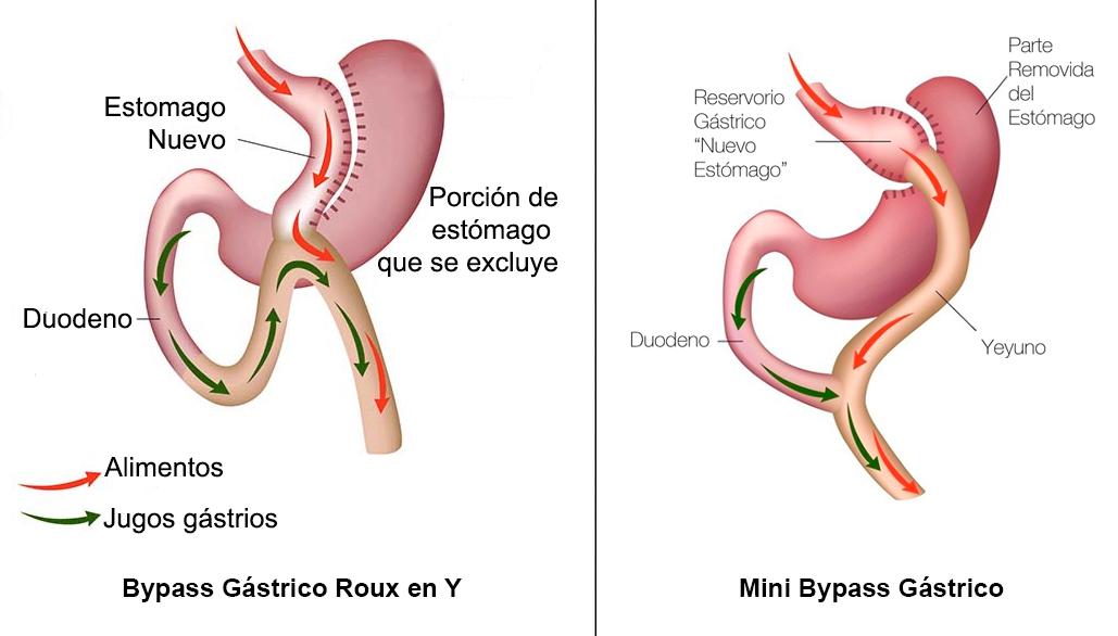 La cirugía de mini bypass gástrico - DictioMedic Guia Medica