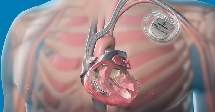 Medtronic's Implantable Defibrillators Vulnerable to Life-Threatening Hacks