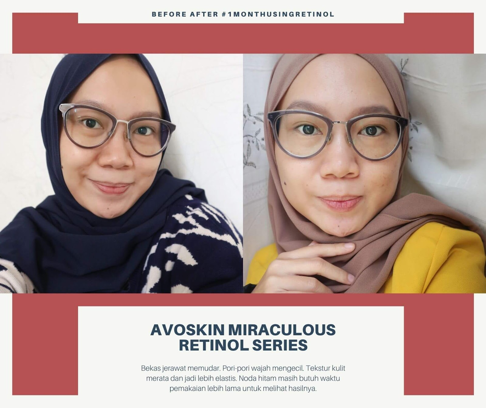 Before After Pemakaian Avoskin Miraculous Retinol Series