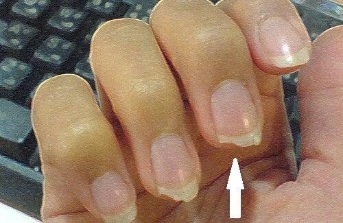Làm thế nào để ngăn móng tay bị gãy