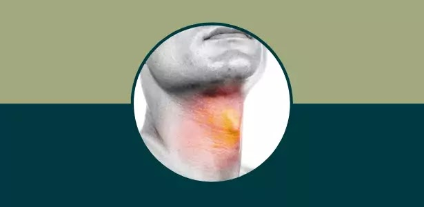 اعراض سرطان الحنجرة المبكر, اعراض سرطان الحنجرة المبكرة, ماهي اعراض سرطان الحنجرة