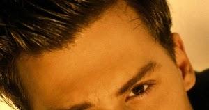 Уменьшение лба в линии роста волос в Корее