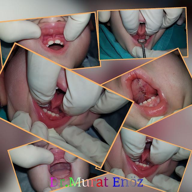 bebeklerde dil bağı ameliyatı yaşı, dil bağı ne zaman kesilmelidir?, dil bağı operasyonu için en küçük yaş