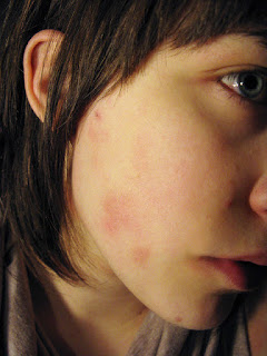 How To Get Rid Of Pimples: The Do's And Don'ts