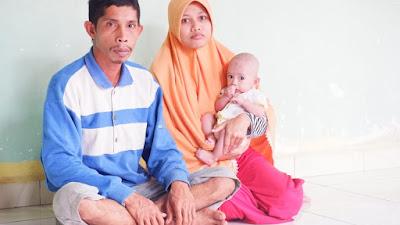 Bayi Empat Bulan Lebih di Desa Oengkolaki, Tidak  Memiliki Anus Sejak Lahir, Butuhkan Perhatian