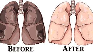 Ternyata Ini Cara Paling Mudah Bersihkan Paru-paru Dari Racun Rokok