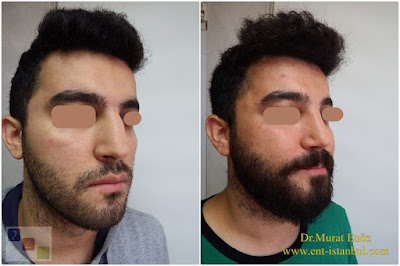 Functional Rhinoplasty Operation in Istanbul