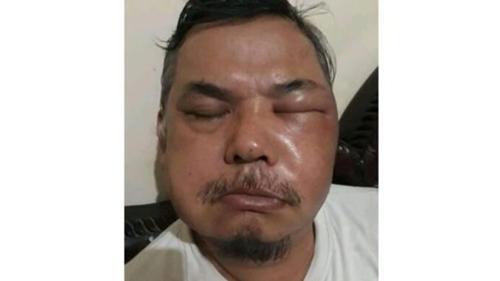 Wajah Seorang Pria Bengkak Keluarkan Cairan Amis Usai Vaksinasi Vac, Netizen: Makin Mengerikan Vaksin Cina Ini!