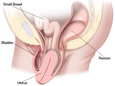 Image result for योनि संकोचन