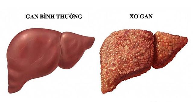 Uống thuốc bổ gan không đúng cách có thể dẫn đến xơ gan