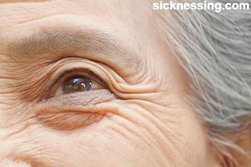 كيفية علاج التجاعيد تحت العين