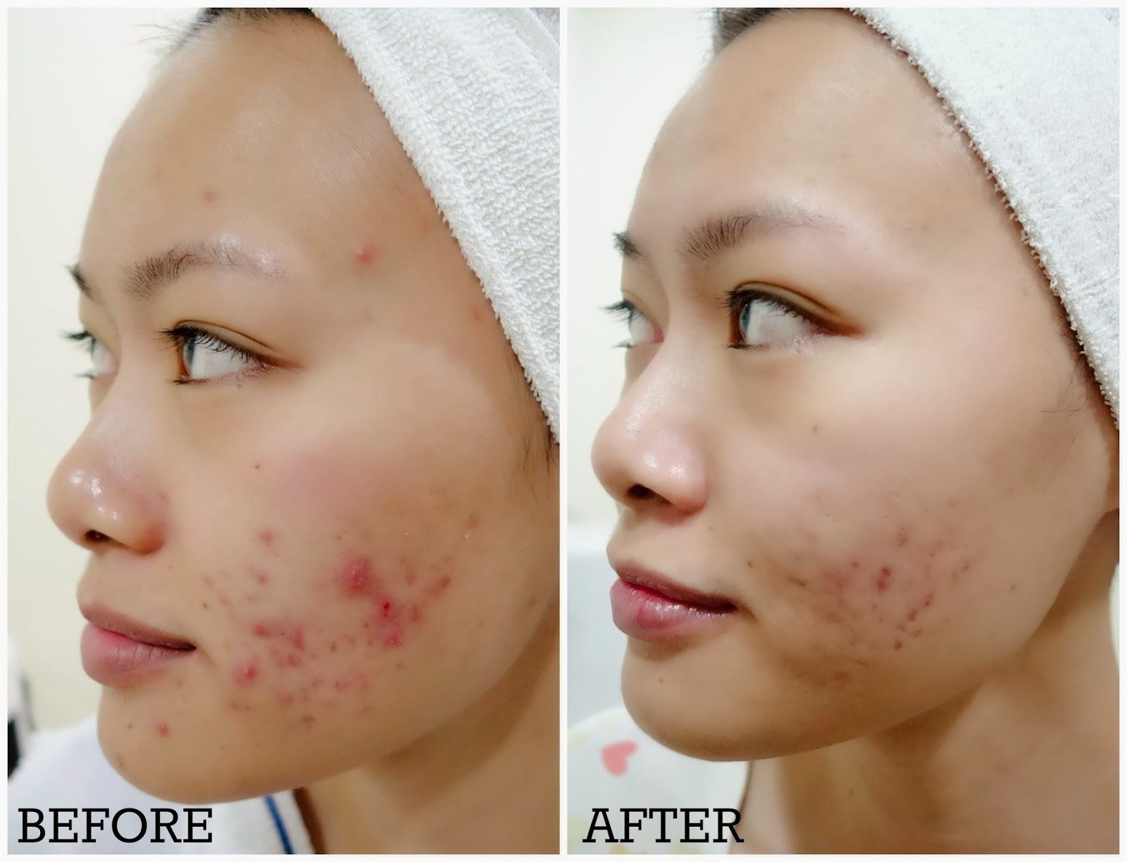 Best Treatment for Acne Prone Skin - Advanced Medical