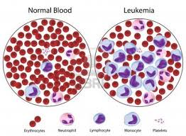 Pengobatan Alternatif Leukemia