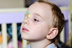 Mata Juling (malas) pada Anak | Kenali Tanda Gejala Sejak Dini