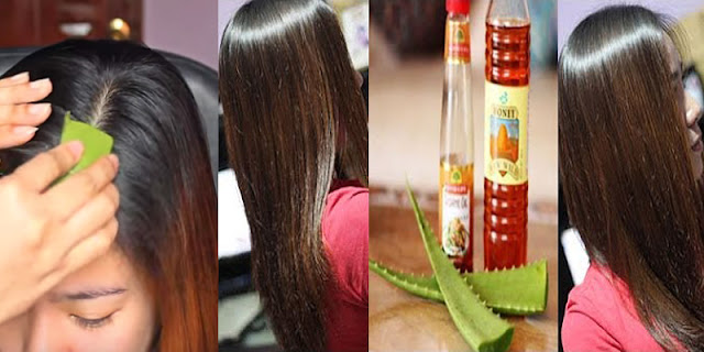 DIY - How To Get Rid Of Dandruff And Itchy Scalp And Grow Hair!