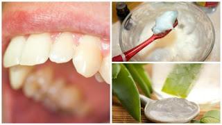Enlever la plaque dentaire avec ces intéressants remèdes naturels