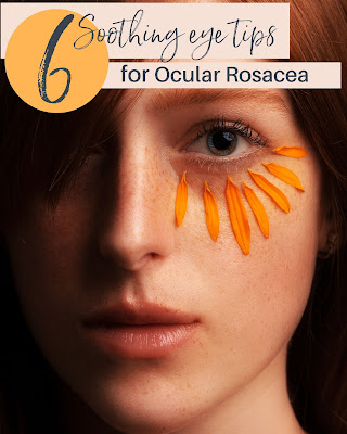 Home remedy tips for ocular rosacea